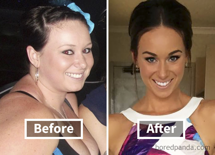 before-after-weight-loss-face-transformation-200-5a2e5fef19231__700